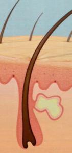 glándula sabácea