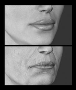 imagen filorga labios